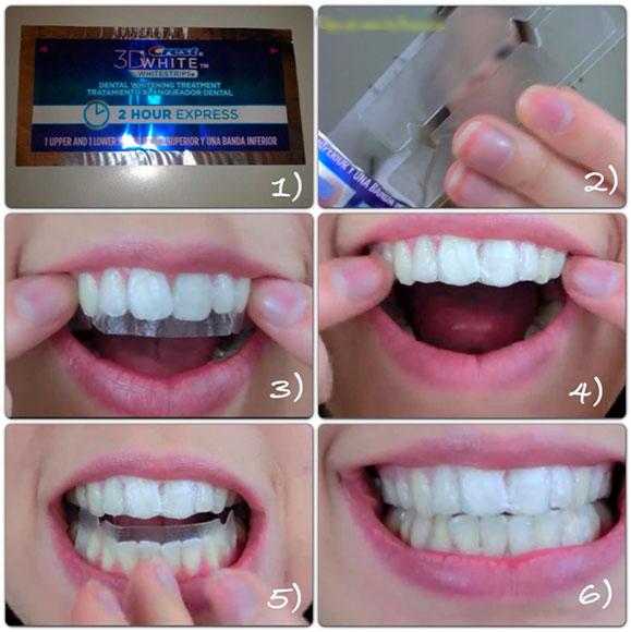 Отбеливание зубов с алиэкспресс видео
