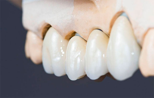 Подготовить зуб под коронку