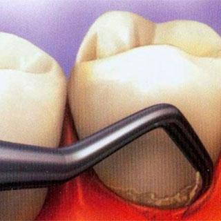 Как лечить камни на зубах в домашних условиях